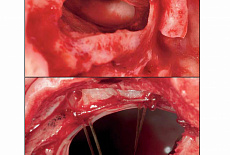 Repair of Large Sinus Membrane Perforations Using Stabilized Collagen Barrier Membranes: Surgical Techniques with Histologic and Radiographic Evidence of Success
