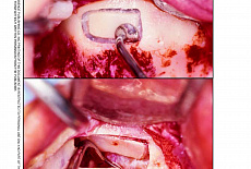 The Piezoelectric Bony Window Osteotomy and Sinus Membrane Elevation: Introduction of a New Technique for Simplification of the Sinus Augmentation Procedure